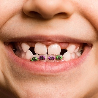 Closeup of child's smile with pediatric braces on bottom teeth
